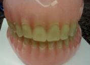Servicio de laboratorio dental,contactarse.
