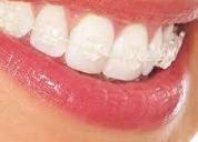 Centro de especialidades odontologicas