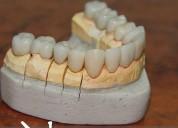 Tecnico dental, protesis esteticas, contactarse.